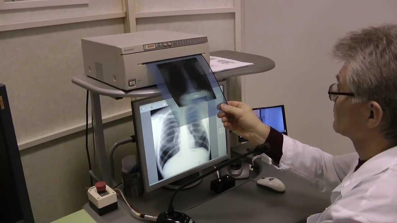 акция по профилактике туберкулёза